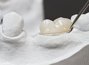 Model of tooth with dental crown