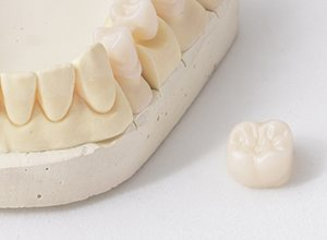 Model of smile and dental crown