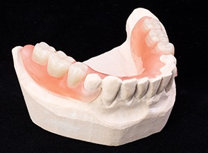 Model teeth with partial denture