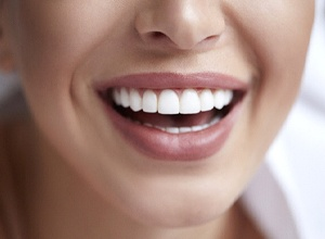 Close-up of woman's bright, beautiful smile after teeth whitening