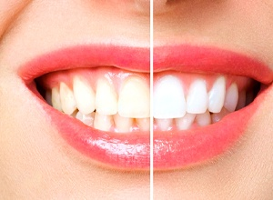 Side by side of teeth before and after whitening treatment