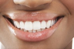 gorgeous veneer smile